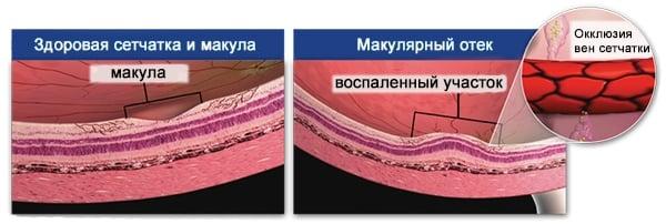 Как выглядит воспаленный участок сетчатки глаза