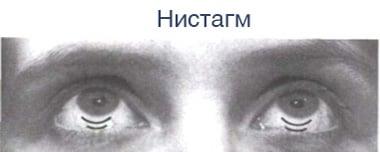 Зависит ли глазное давление от артериального давления